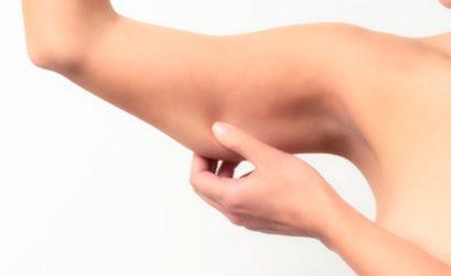 Combattere Cellulite sulle Braccia